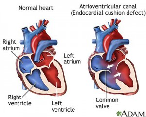 atrioventricular-canal-endocardial-cushion-defect